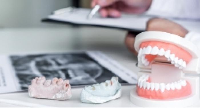 Prótese dentária: descubra se esse procedimento é ideal para você
