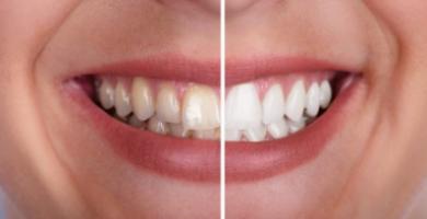 Dentes amarelados: conheça as 5 principais causas