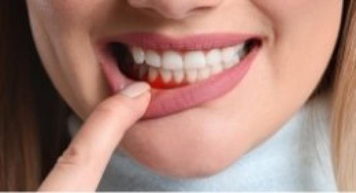 Sangramento da gengiva: veja como resolver esse problema