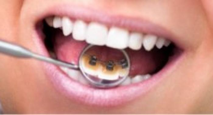 Saiba o que é a ortodontia lingual e quanto custa esse tratamento
