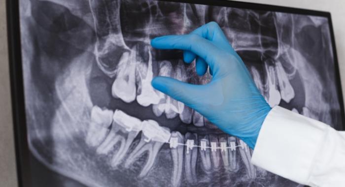 Dentista canal: especialidade responsável por cuidar da saúde dos dentes