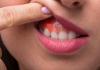 Abcesso dentário: conheça tudo sobre essa doença e como evitá-la