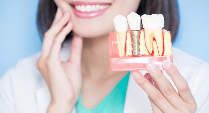 3 dúvidas comuns sobre os implantes dentários