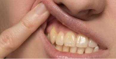 Saiba como tirar amarelo do dente e como evitá-lo