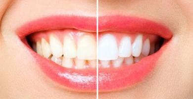 Alimentos que devem ser evitados após clareamento dental