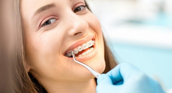Plano odontológico cobre aparelho? Veja principais dicas para colocar o seu