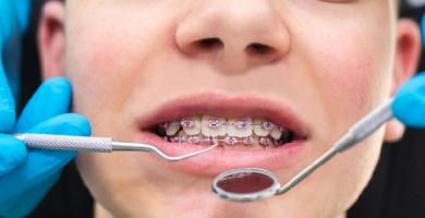 Plano odontológico com ortodontia: confira tudo que está incluso para seu tratamento