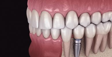Quando é necessário fazer um implante dentário?