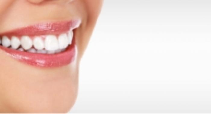 Saiba quais as técnicas odontológicas que deixarão seu sorriso perfeito