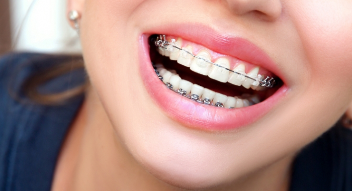 Alinhador dentário: como escolher a melhor opção para o seu sorriso