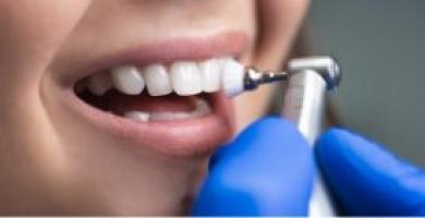 Clareamento dentário: saiba tudo sobre esse tratamento e seus benefícios