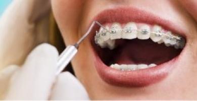 Aparelho dentário fixo: saiba tudo e tire todas as suas dúvidas!