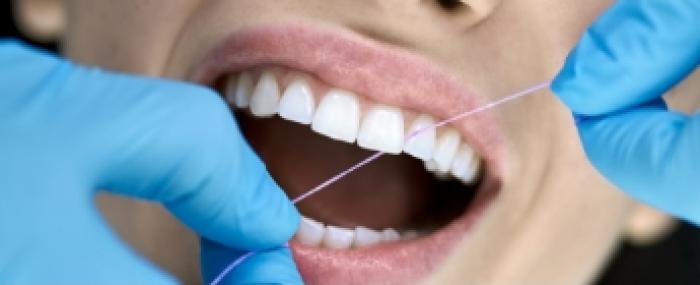 Limpeza de dente: descubra se está na hora de agendar uma com seu dentista