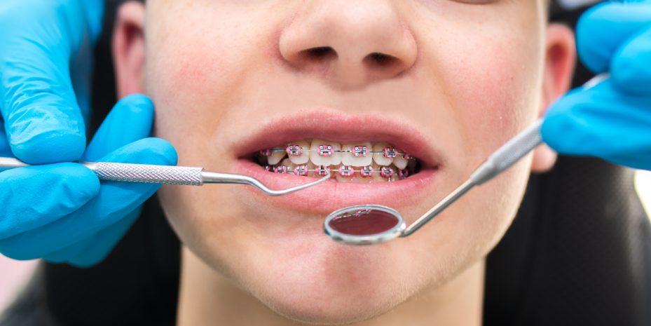 close do rosto de um menino durante um atendimento do seu plano odontologico com ortodontia. ele esta sorrindo para que o profissional possa analisar o aparelho ortodontico