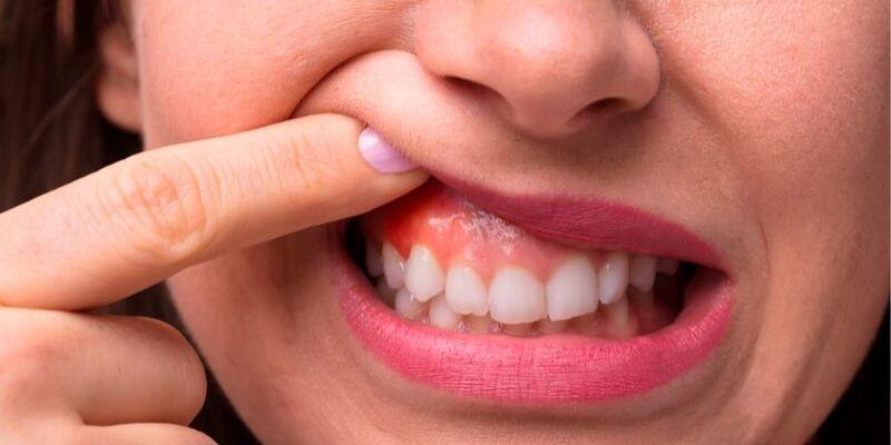 close do rosto de uma mulher. Ela esta sorrindo e segurando o labio superior com o dedo, mostrando uma possível gengivite