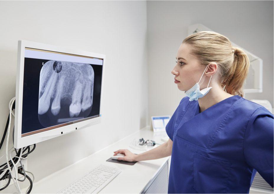 dentista de cabelos loiro analisando o resultado de um exame de raio x em uma tela de computador