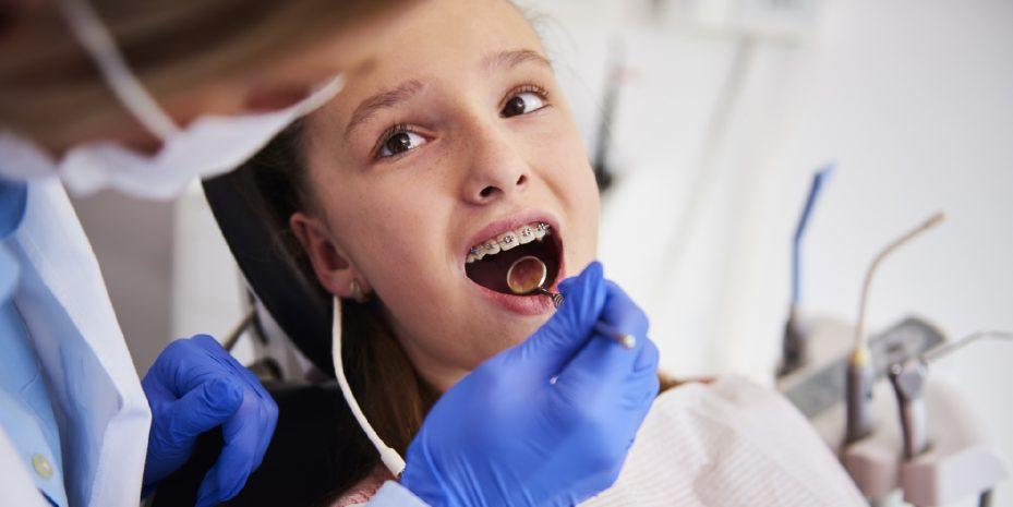 menina de boca aberta sendo atendida pela sua dentista que atende um plano odontologico com aparelho ortodontico. a dentista esta usando luvas azuis