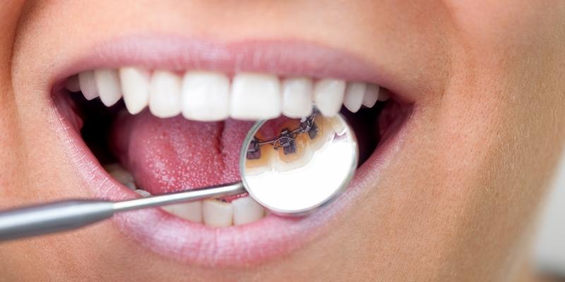 paciente com a boca aberta e um instrumento do dentista mostrando o aparelho fixo lingual