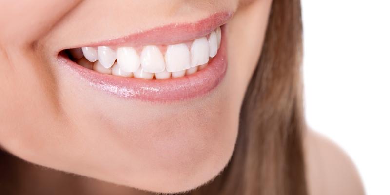 foto do sorriso de uma mulher usando aparelho de ortodontia lingual