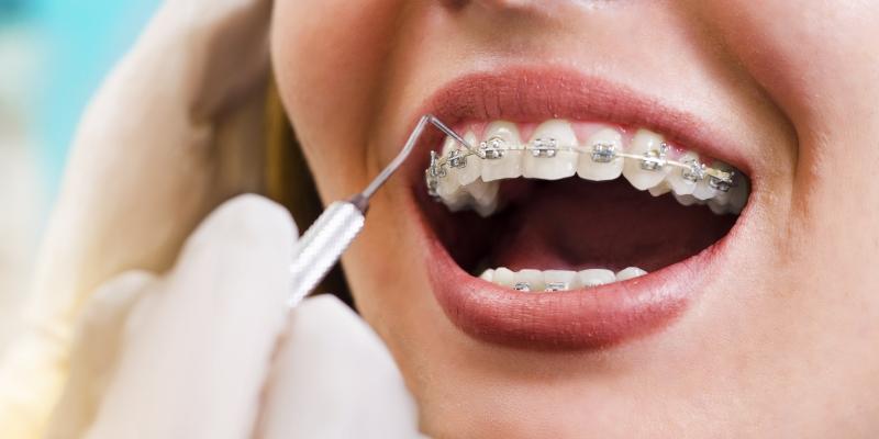 mulher em um dentista colocando aparelho dentário fixo