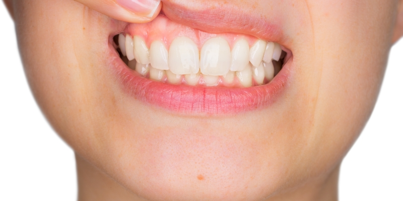 mulher com o dedo na boca mostrando mancha branca na gengiva