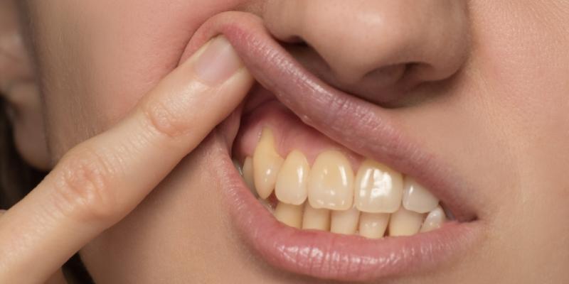 Pessoa mostrando os dentes para realizar um tratamento para tirar amarelo do dente