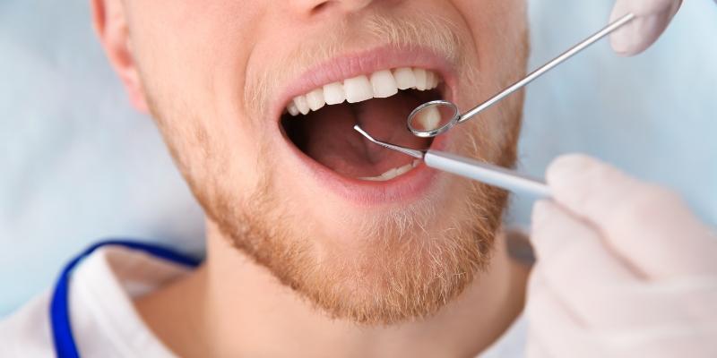 homem deitado em uma cadeira de dentista com a boca aberta realizando um procedimento de raspagem de tártaro com equipamentos odontológicos