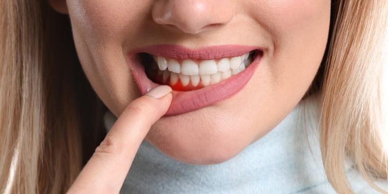 mulher com o dedo na boca mostrando  sangramento da gengiva