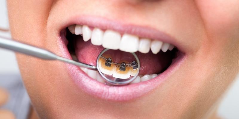 foto da boca de uma mulher sorrindo mostrando o aparelho de ortodontia lingual