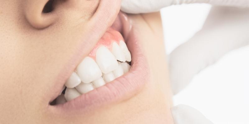 dentista examinando a gengiva preta de sua paciente com equipamentos odontológicos