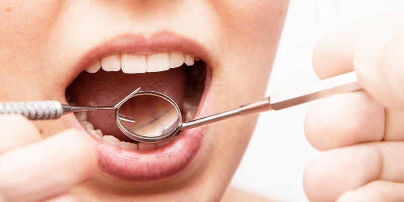 um especialista em gengiva examinando a boca de sua paciente