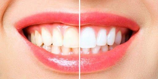 sorriso com os dentes metade amarelos e outra parte na cor branca