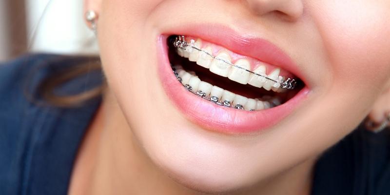 mulher sorrindo mostrando seu alinhador dentário